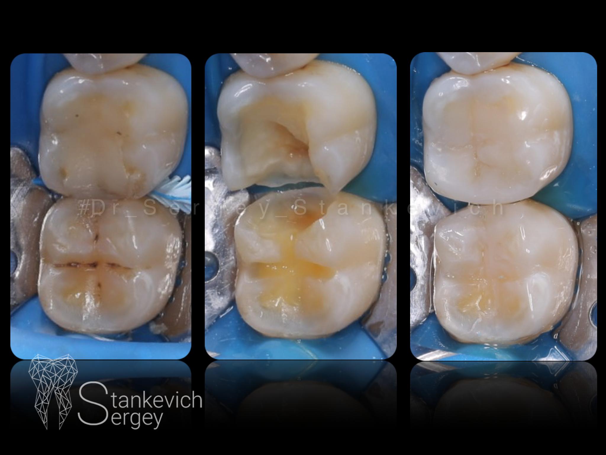 Composite restorations 03