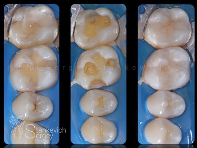 Composite restorations 04