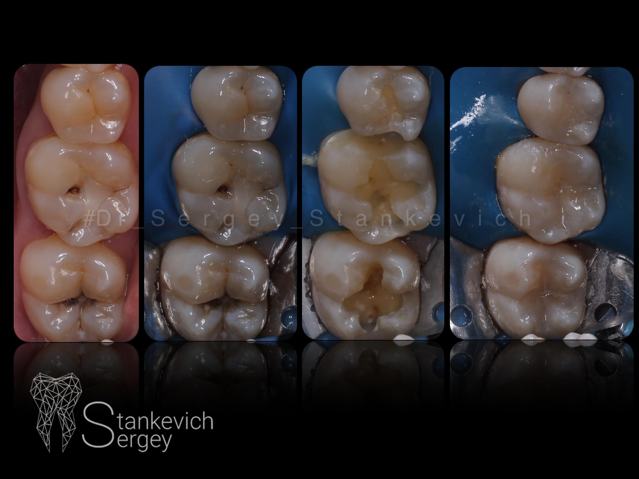 Composite restorations 08