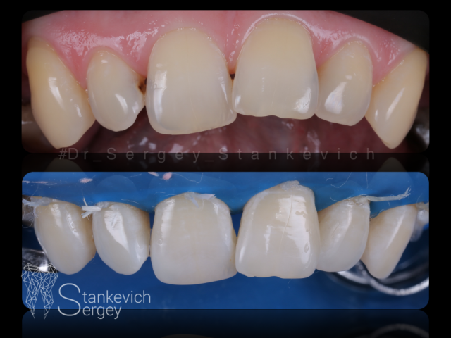 Composite restorations 11