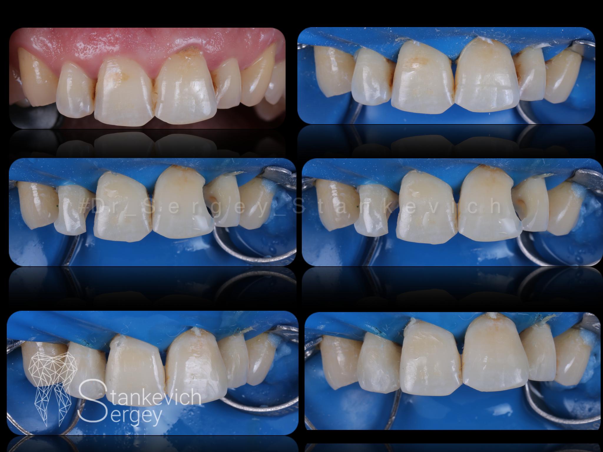 Composite restorations 12
